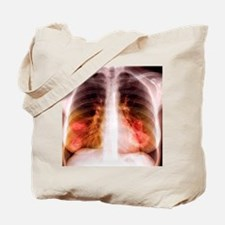 Lung lesions, X-ray Tote Bag