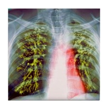 Lung scarring from tuberculosis, X-ra Tile Coaster