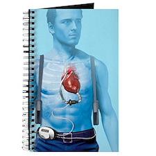 Mechanical heart pump, artwork Journal
