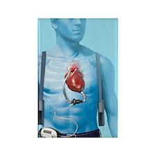 Mechanical heart pump, artwork Rectangle Magnet