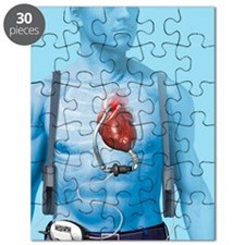 Mechanical heart pump, artwork Puzzle