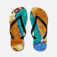 Mitochondrion, TEM Flip Flops