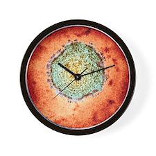 Mumps virus, TEM Wall Clock