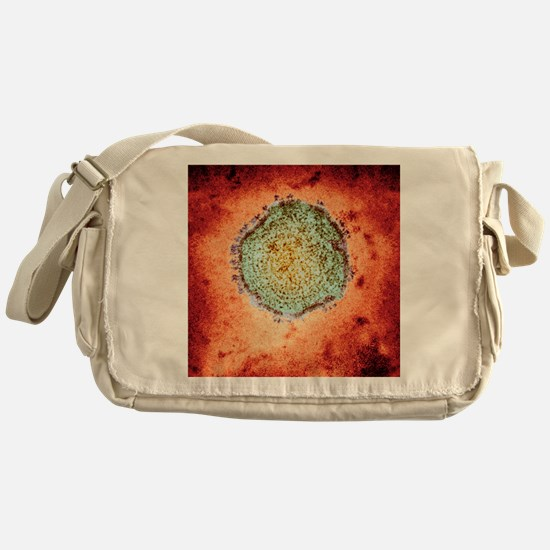 Mumps virus, TEM Messenger Bag