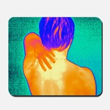 Neck pain, thermogram Mousepad