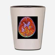 Multiple sclerosis brain, MRI scan Shot Glass