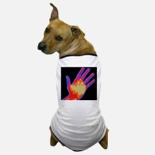 Non-smoker hand thermogram Dog T-Shirt