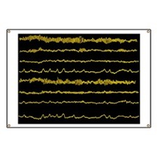Normal EEG read out of the brains alpha wav Banner