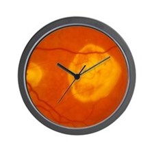 Ophthalmoscopy of disciform macula dege Wall Clock