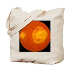 Ophthalmoscopy of disciform macula degene Tote Bag