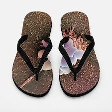 Ovarian cancer cell, SEM Flip Flops