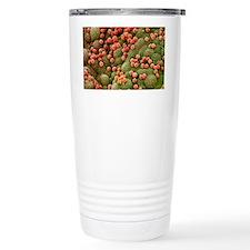 Ovarian cyst lining, SEM Travel Mug