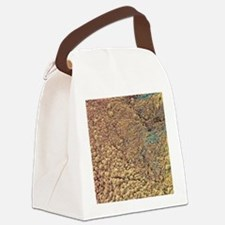 Ovarian cyst, SEM Canvas Lunch Bag