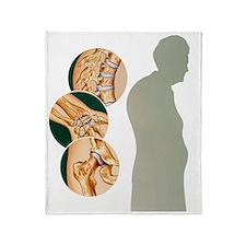 Osteoporosis Throw Blanket