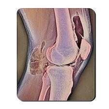 Osteoarthritic knee X-ray Mousepad