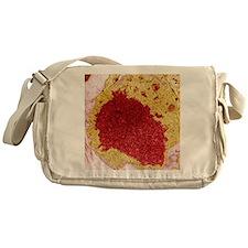 Papilloma virus particles, TEM Messenger Bag