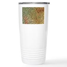 Ovarian cyst, SEM Travel Mug
