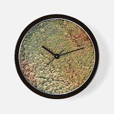 Ovarian cyst, SEM Wall Clock