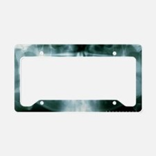 Panoramic dental X-ray of imp License Plate Holder
