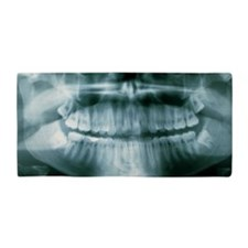 Panoramic dental X-ray of impacted wis Beach Towel