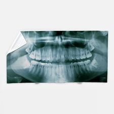 Panoramic dental X-ray of impacted wis Beach Towel