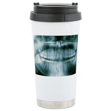 Panoramic dental X-ray of impac Travel Mug