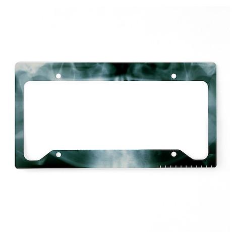 m7820167 License Plate Holder