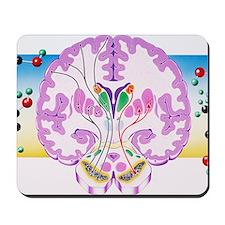 Parkinson's disease Mousepad