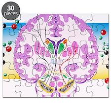 Parkinson's disease Puzzle