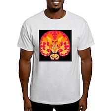 Parkinson's disease T-Shirt