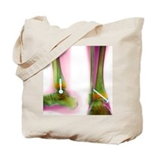 m3301114 Tote Bag