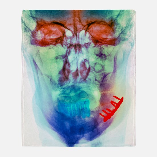 Pinned broken jaw, X-ray Throw Blanket