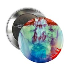 "Pinned broken jaw, X-ray 2.25"" Button"