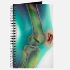 Pinned kneecap fracture, X-ray Journal