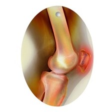 Pinned kneecap fracture, X-ray Oval Ornament