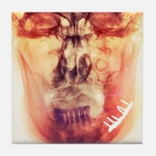 Pinned broken jaw, X-ray Tile Coaster