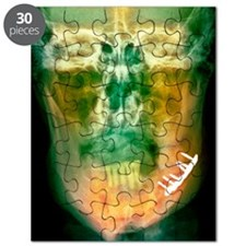 Pinned broken jaw, X-ray Puzzle