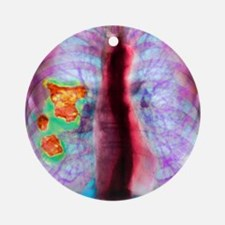 Pleural plaque, X-ray Round Ornament