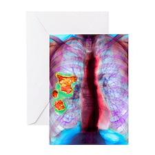 Pleural plaque, X-ray Greeting Card