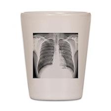 Pneumothorax, X-ray Shot Glass