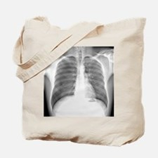 Pneumothorax, X-ray Tote Bag