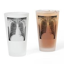 Pneumothorax, X-ray Drinking Glass