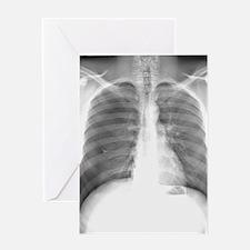 Pneumothorax, X-ray Greeting Card