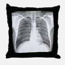 Pneumothorax, X-ray Throw Pillow
