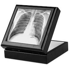 Pneumothorax, X-ray Keepsake Box