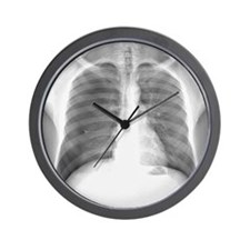 Pneumothorax, X-ray Wall Clock