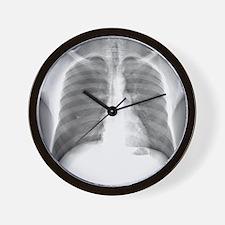 Pneumothorax, X-ray Wall Clock