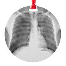 Pneumothorax, X-ray Ornament