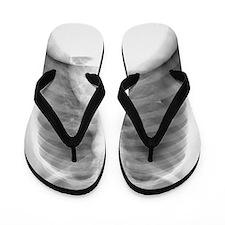 Pneumothorax, X-ray Flip Flops