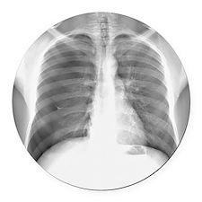 Pneumothorax, X-ray Round Car Magnet